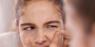 tại sao uống collagen bị nổi mụn